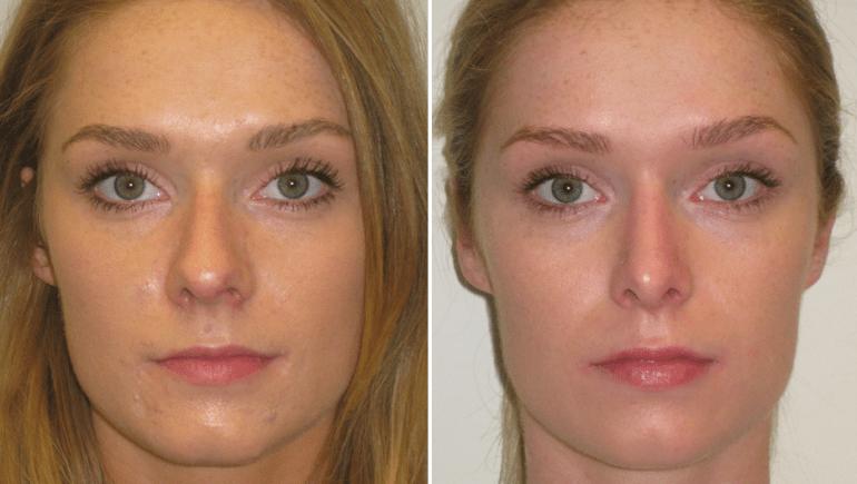 Giorgia prima e dopo rhino corect (2 settimane di trattamento)