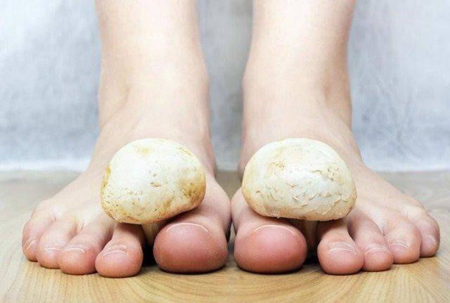 Hongos mas comunes en los pies