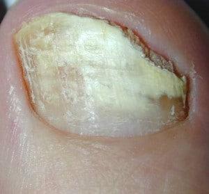 Come vincere contro un fungo di unghie e piede