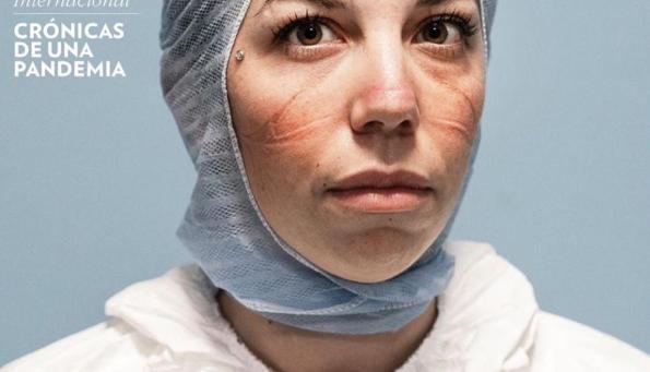 Marie Claire méxico apresenta médica com o rosto machucado pelo uso de máscara contra o covid-19