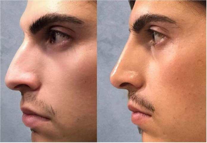 Antes e depois - Rapaz com preenchimento de ácido hialurônico no nariz