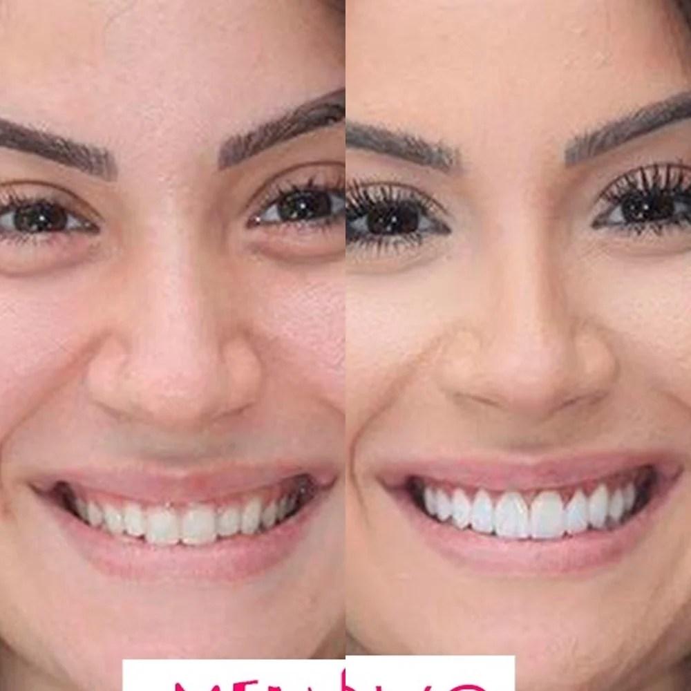 Antes e depois da gengivoplastia em ex-bbb