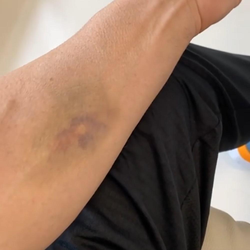 Marcas da quimioterapia de Alexandre Correa.