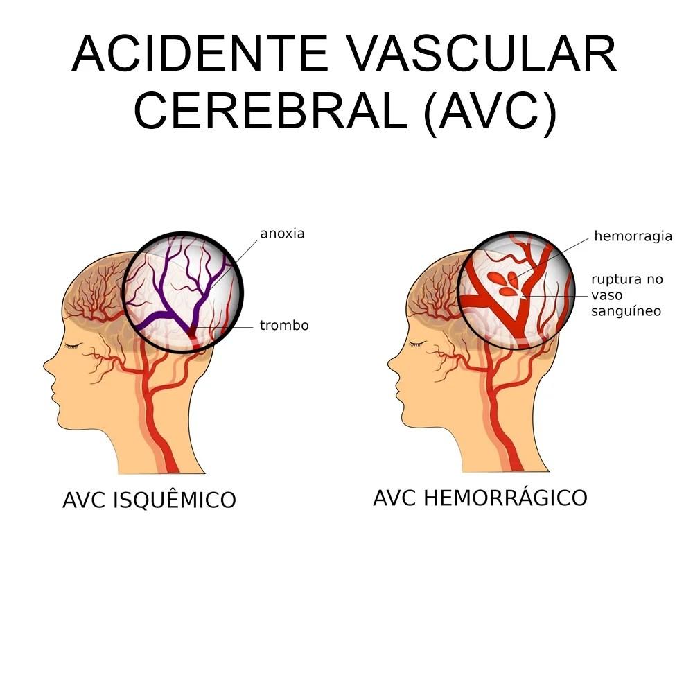 Desenho explicativo sobre o AVC.