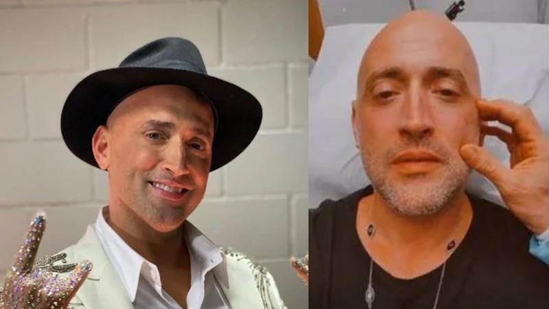 Paulo Gustavo desabafa sobre botox