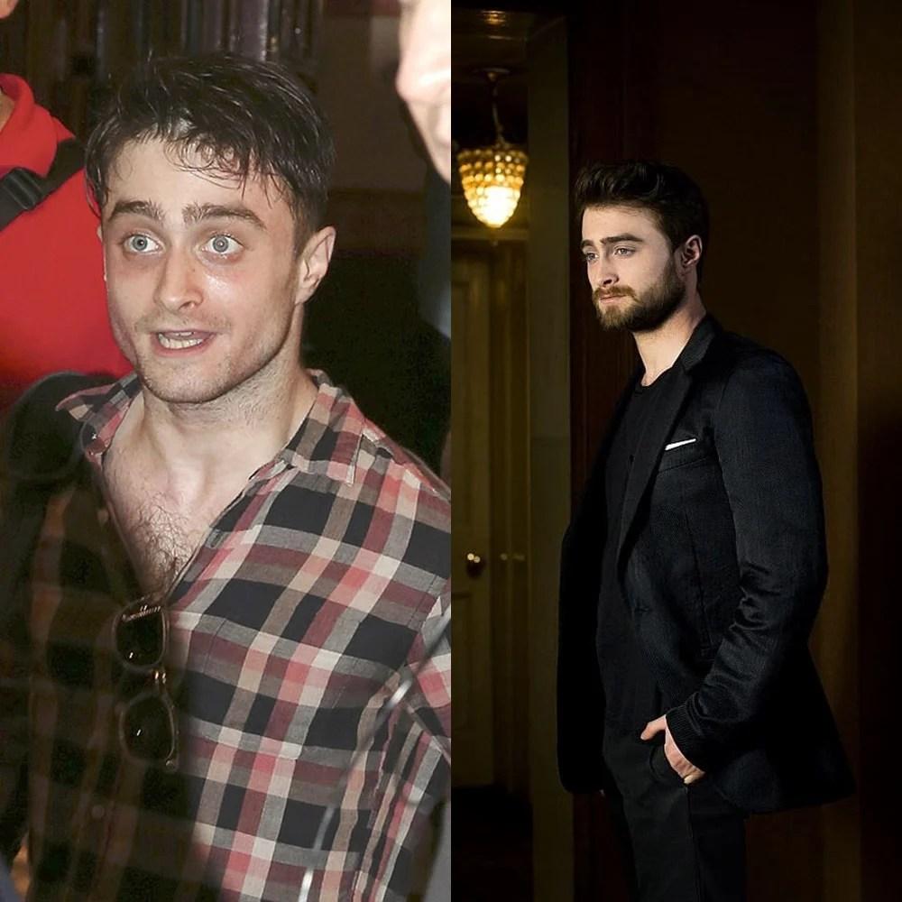 Antes e depois do álcool: Daniel Radcliffe.