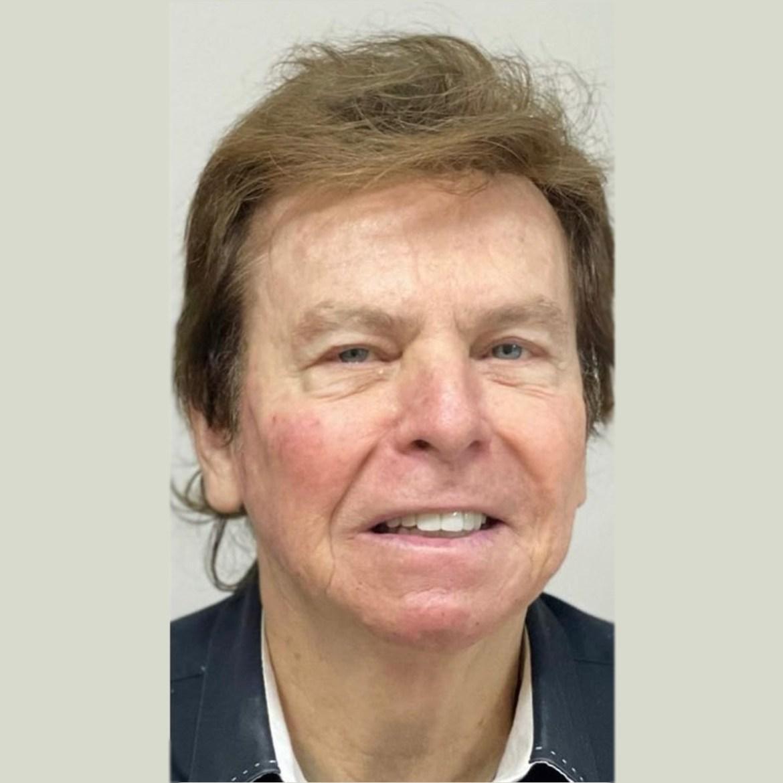 Resultado, harmonização facial de Nelson Rubens.