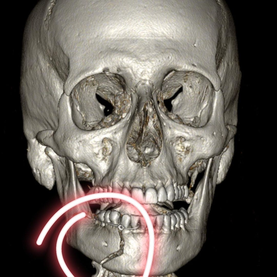 Crânio mostrando fatura de Henri Castelli.