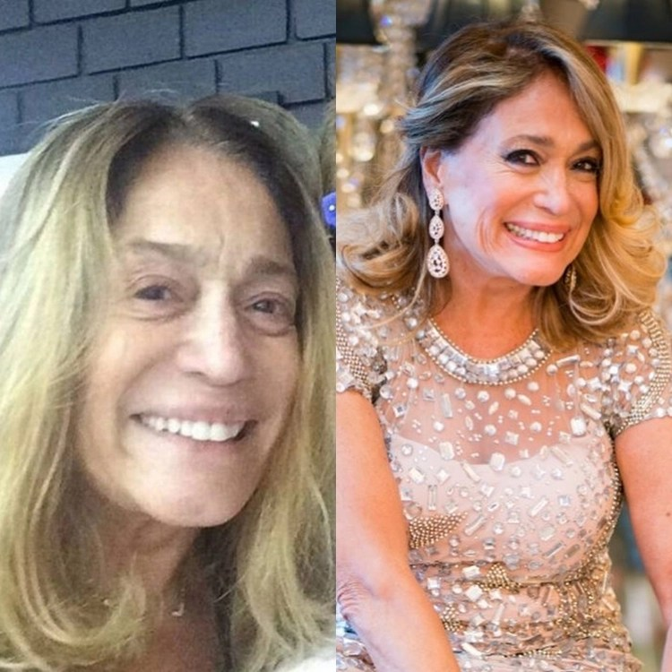 Suzana Vieira com e sem maquiagem.
