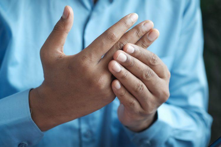 Homem com mão inflamada.