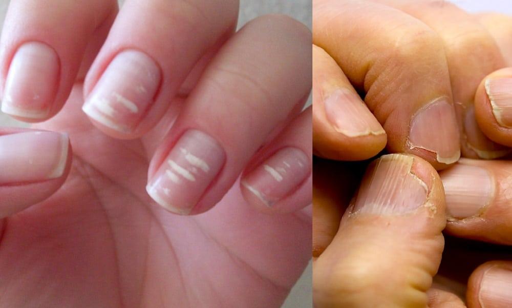 Mãos com unhas que apresentam falta de vitaminas