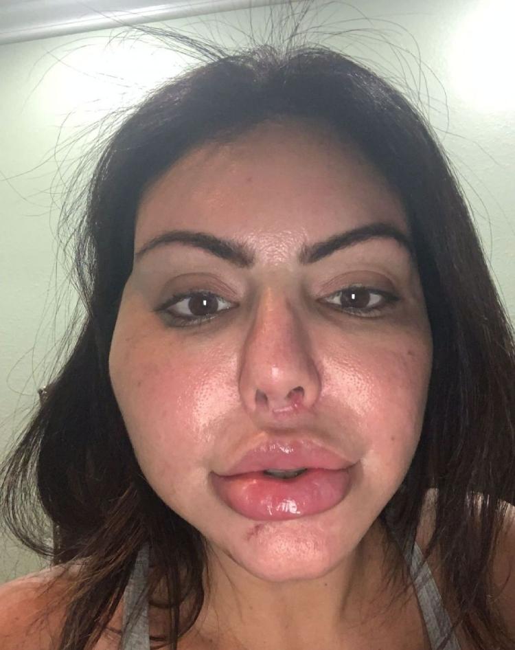 Liziane Gutierrez com a boca inchada