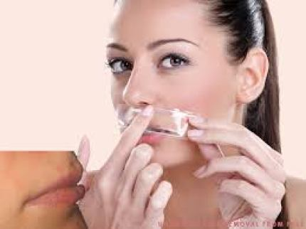 facial hair removal for women