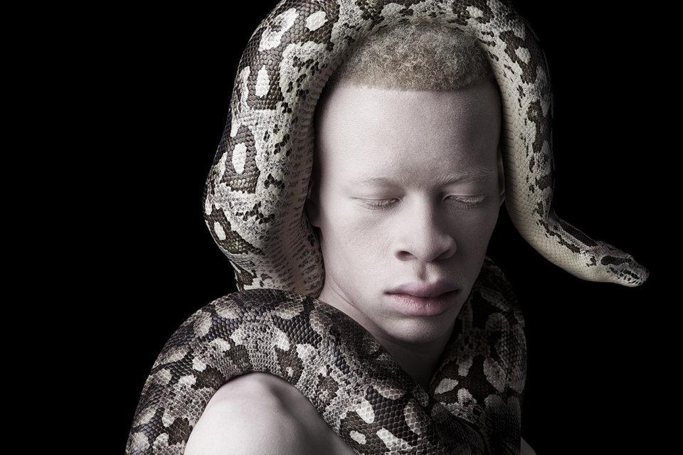 albino photography (3)