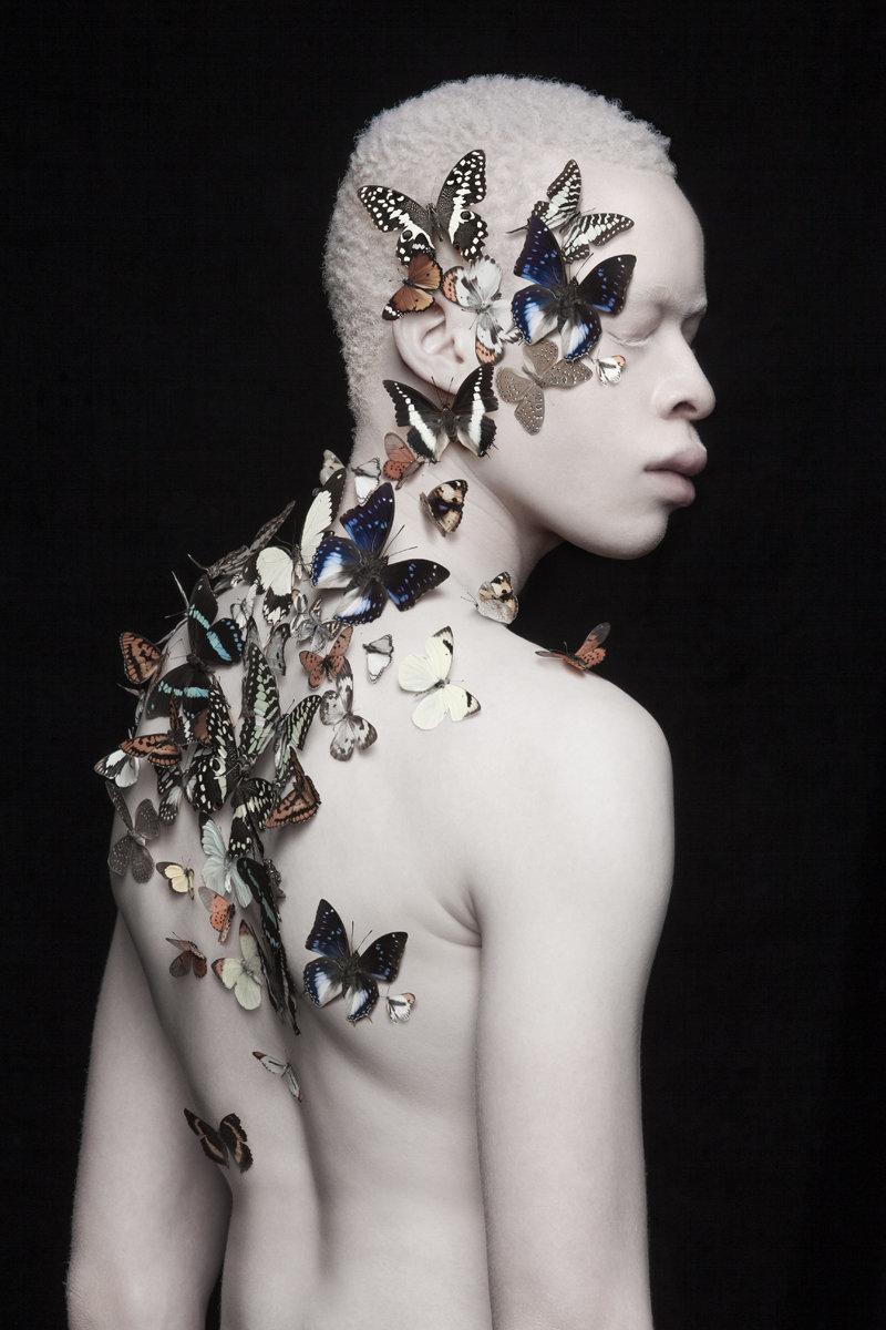 albino photography (4)