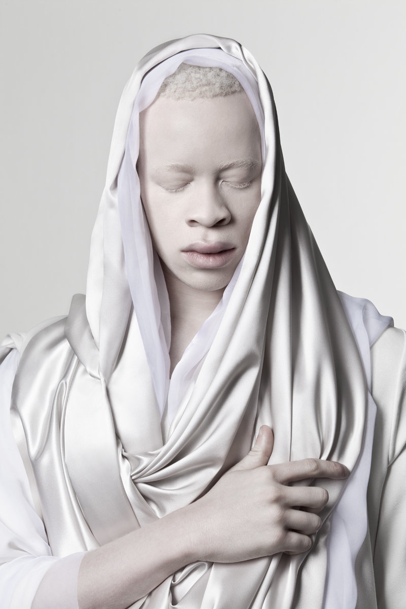 albino photography (5)