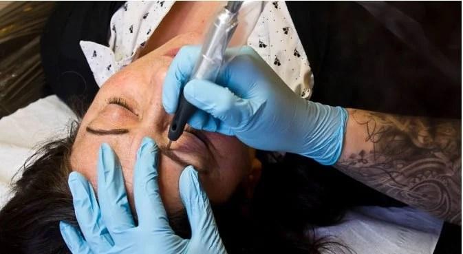 Saline Tattoo Removal method
