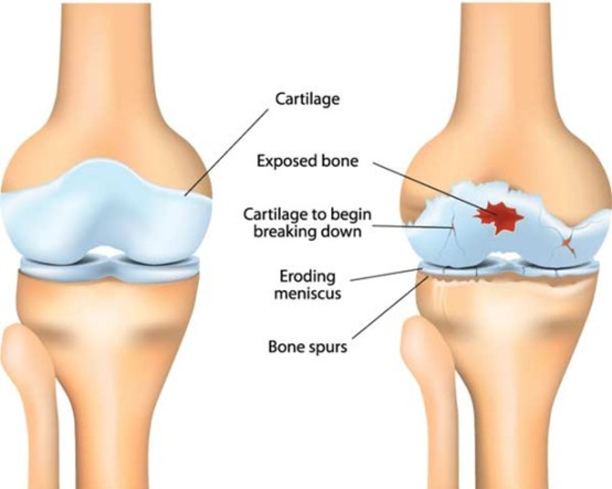 Arthritis as cause of joint pain