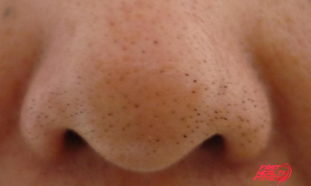 10 Tips To Get Rid Of Blackheads On Nose Fast Health Fitness