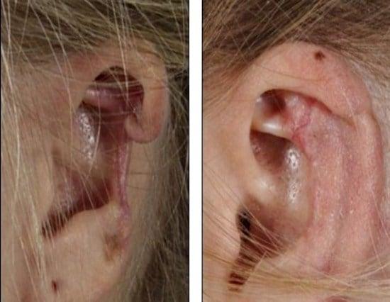 picada-de-aranha-venenosa-derreteu-a-cartilagem-da-orelha-de-uma-holandesa598e0eec4d3aec72fd17841945e6c4ab