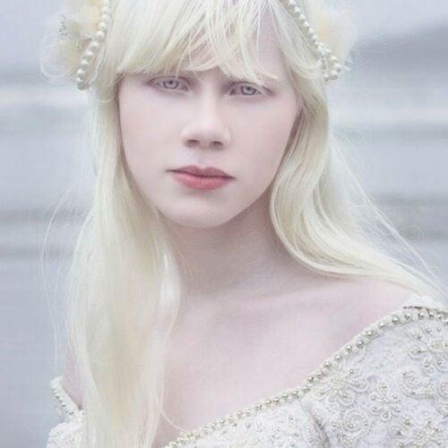 albino 9