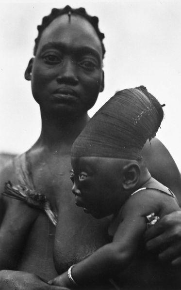 Você precisa conhecer a história de Nyakim Gatwech, a modelo negra que luta contra o racismo e a desigualdade