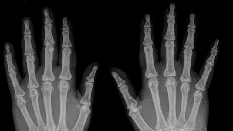 Isso é o que acontece se você estalar demais as suas mãos e dedos
