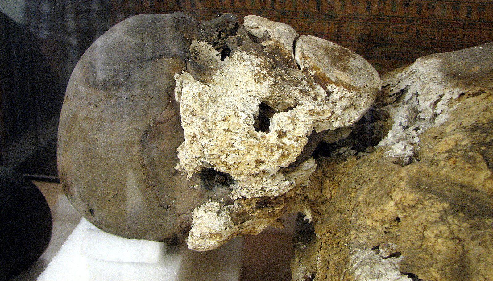 9 cadáveres mais bizarros já encontrados