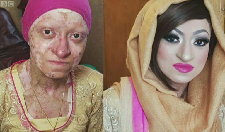 Essa mulher tem uma doença que deixa a pele tão frágil quanto a asa de uma borboleta