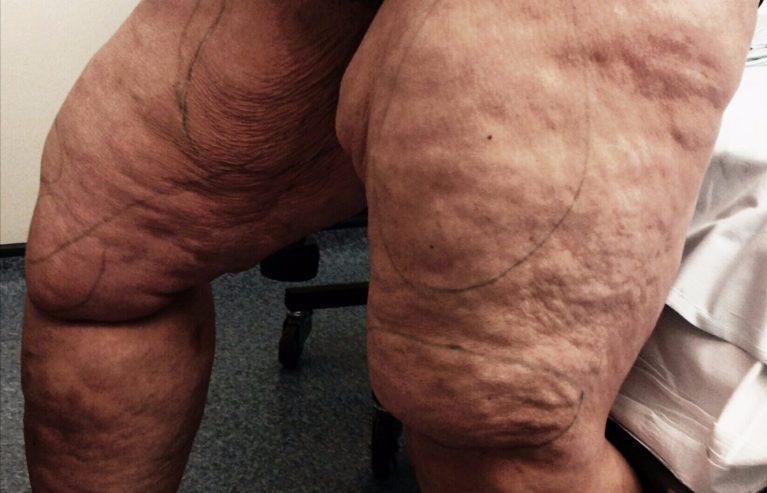 Essa mulher tirou 12 litros de gordura das pernas e ficou irreconhecível