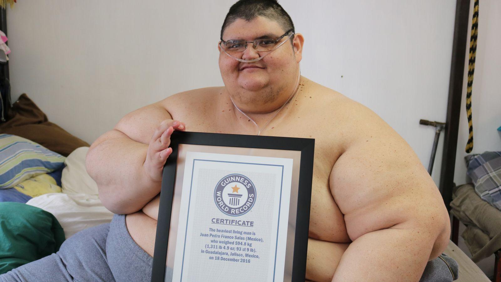 Ele era o homem mais gordo do mundo, isso é o que ele conta depois de perder 220 Kg