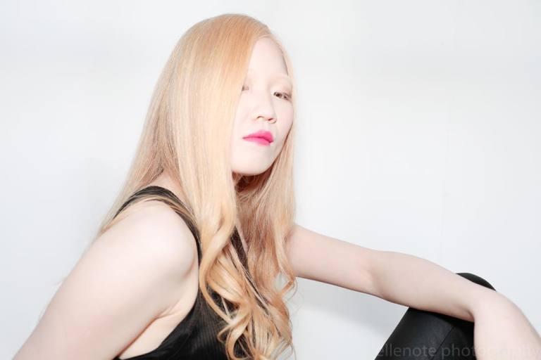 É assim que os albinos de etnias diferentes se parecem