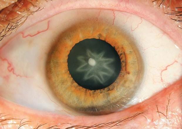 7 coisas medonhas que podem acontecer com seus olhos
