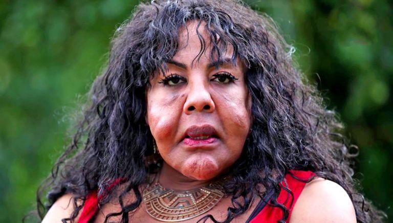 Um médico louco injetou cimento no rosto dessa mulher e é assim que ela está 11 anos depois