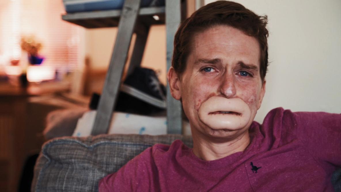 Conheça a história chocante de Alex Lewis que perdeu todos seus membros a partir de uma infecção