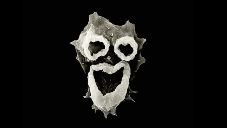 """Conheça a ameba """"comedora de cérebros"""" encontrada em lagos e piscinas sujas"""