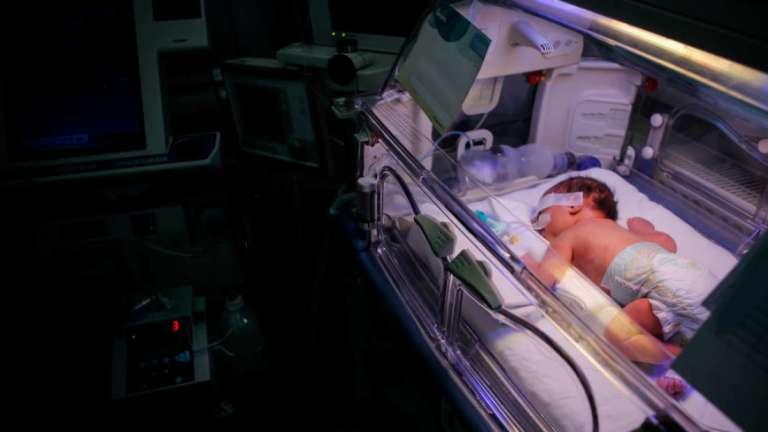Nascer prematuramente pode afetar a personalidade, entenda