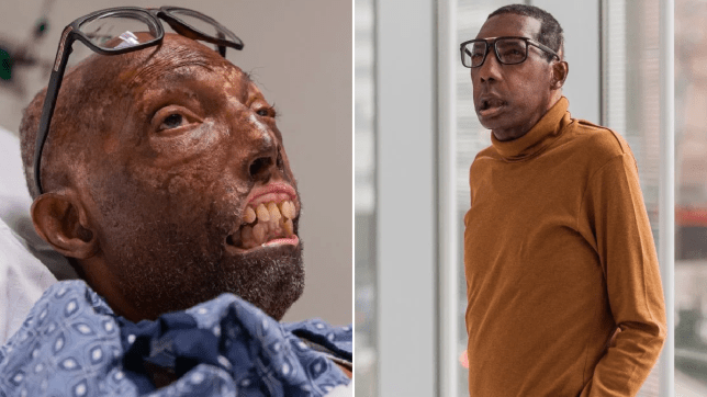 Como ficou o primeiro homem negro a receber transplante de rosto?