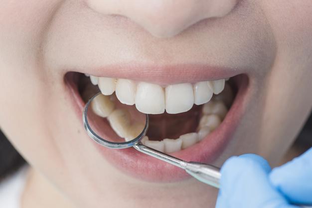 10 coisas que seus dentes podem dizer sobre sua saúde