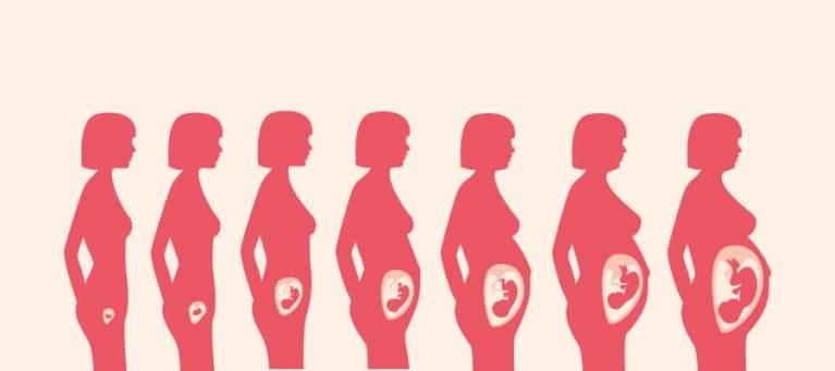 A gravidez está durando menos e esse é o motivo, segundo pesquisa
