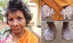 A história da mulher que nasceu com 31 dedos