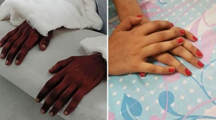 A incrível história da mulher que passou por um transplante de mãos e seus novos membros mudaram de cor