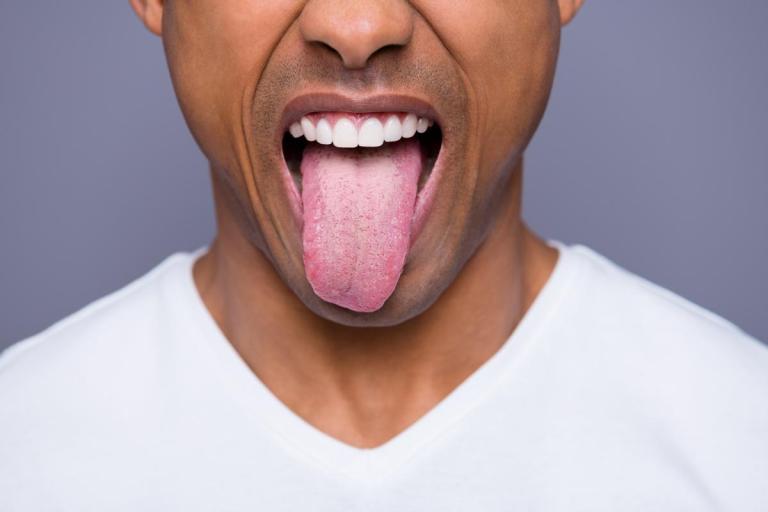 O que a aparência da sua língua tem a dizer sobre sua saúde?