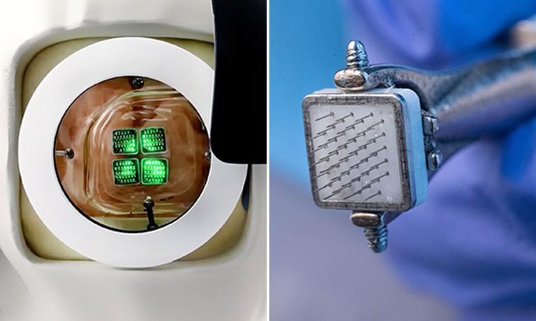 Cientistas estão preparando o primeiro implante de olho biônico do mundo
