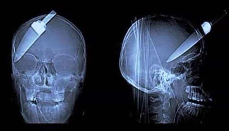 6 coisas mais estranhas que foram capturadas por imagens de raio-X