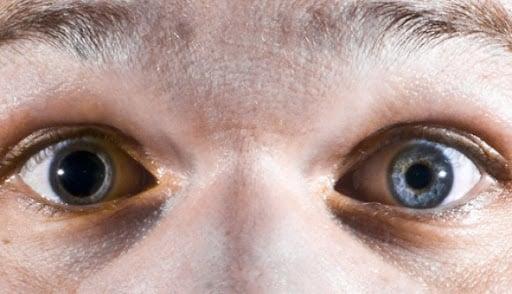 Pupila, Fatos Desconhecidos
