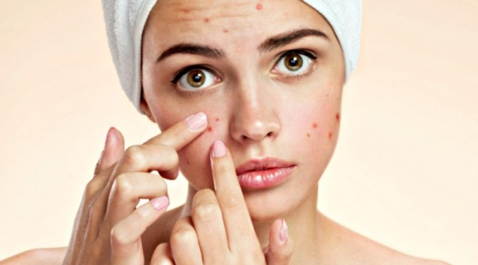 Fight Against Acne by Using Retin a Gel 0.1 and Tretinoin Gel 0.1 Menarini