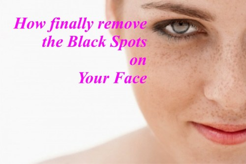 Black Spots on Your Face