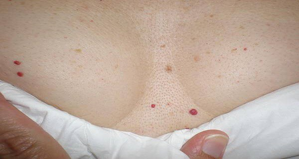 do-you-have-these-red-spots-on-various-parts-of-your-body-should-you-worry