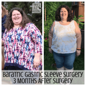 Bariatric gastric sleeve surgery results - This is an update 3 months after gastric sleeve surgery including before and after pictures (or is it before and during?). She is losing weight quickly and eating a healthy diet that she can maintain for life!